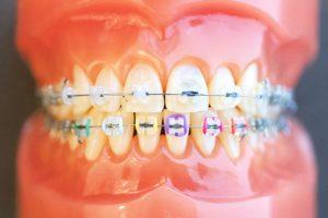 湘南台矯正歯科 (矯正治療)
