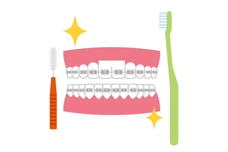 歯列矯正治療 (かみ合わせ)